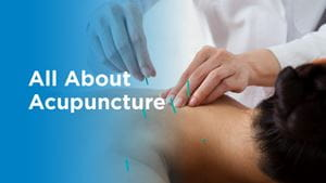 All about acupuncture and photo of man receiving acupuncture services.