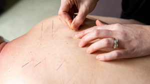 Patient receiving acupuncture treatment at Clifton Springs